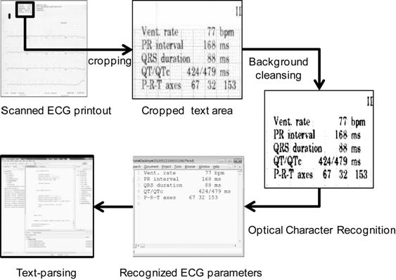ECG-ViEW: Electrocardiogrm Vigilance with Electronic data